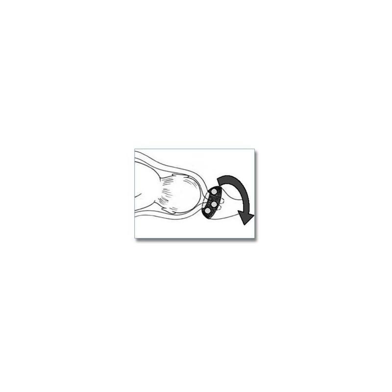 vaginale pessar einlegen